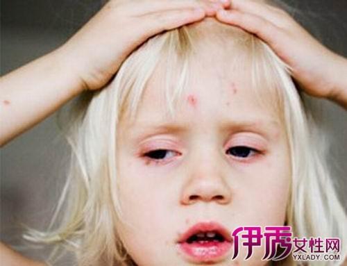 【出水痘要几天痊愈】【图】小孩出水痘要几天