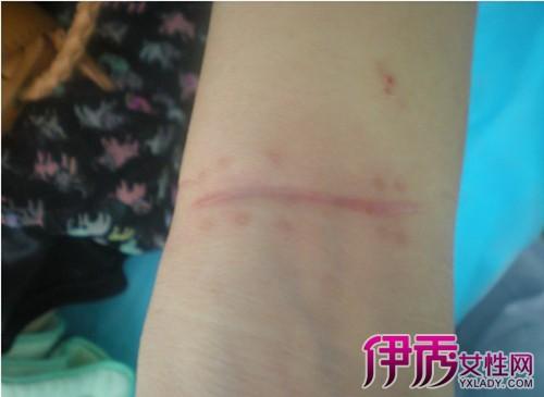【增生性疤痕會自愈嗎】【圖】請問增生性疤痕會自愈圖片
