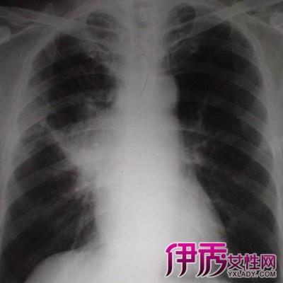 晚期肺癌临死前症状有哪些
